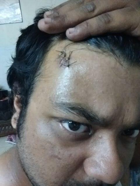 4 Stitches no forehead